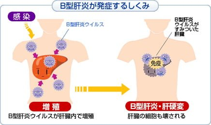 出典:http://jbpo.or.jp/hbv/about/hepatitis.html